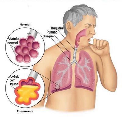 ¿Cómo mueren los pacientes con COVID-19? 2